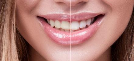 Дисколорит зубов