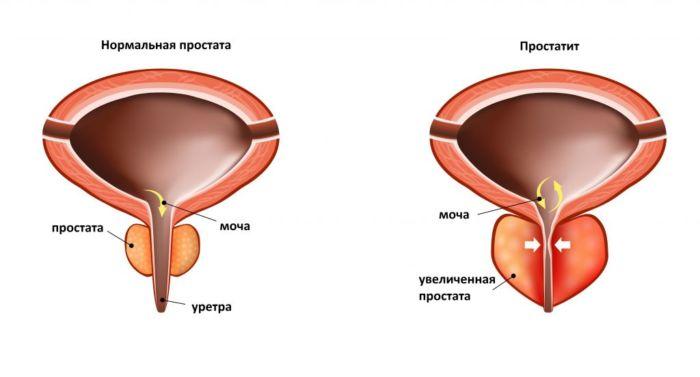 Где находится простата