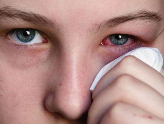 Чем лечить ячмень на глазу