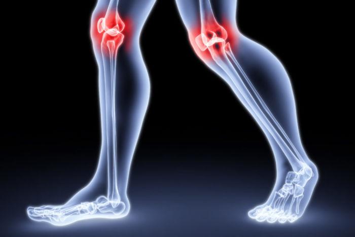 Чем отличается артроз от артрита