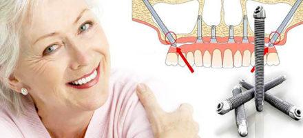 Что такое скуловая имплантация