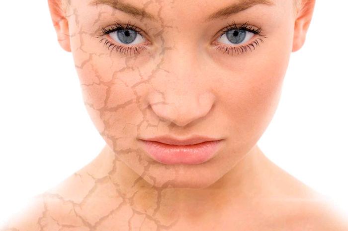 Обезвоженная кожа. Средства профилактики