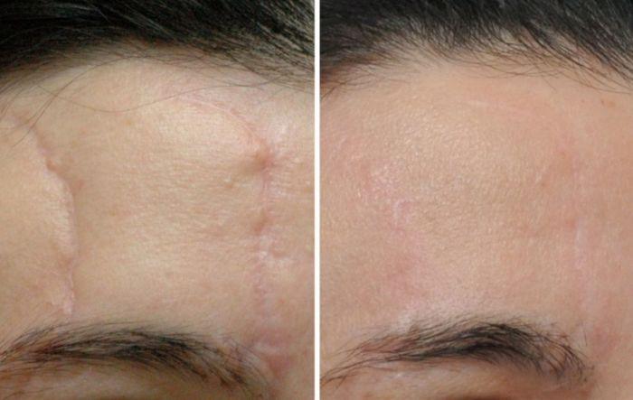 Способы удаления шрамов