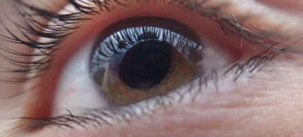Заболевания роговицы глаза. Методы лечения