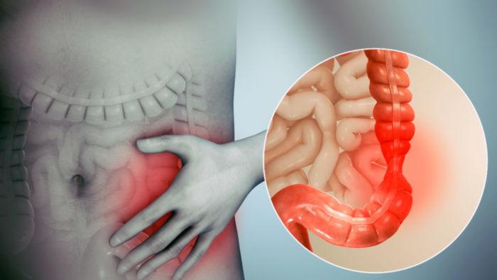 Раздраженный кишечник – как лечить