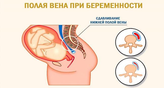 Головокружение при беременности