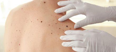 Меланома кожи — заболевание
