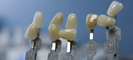 Секреты протезирования зубов